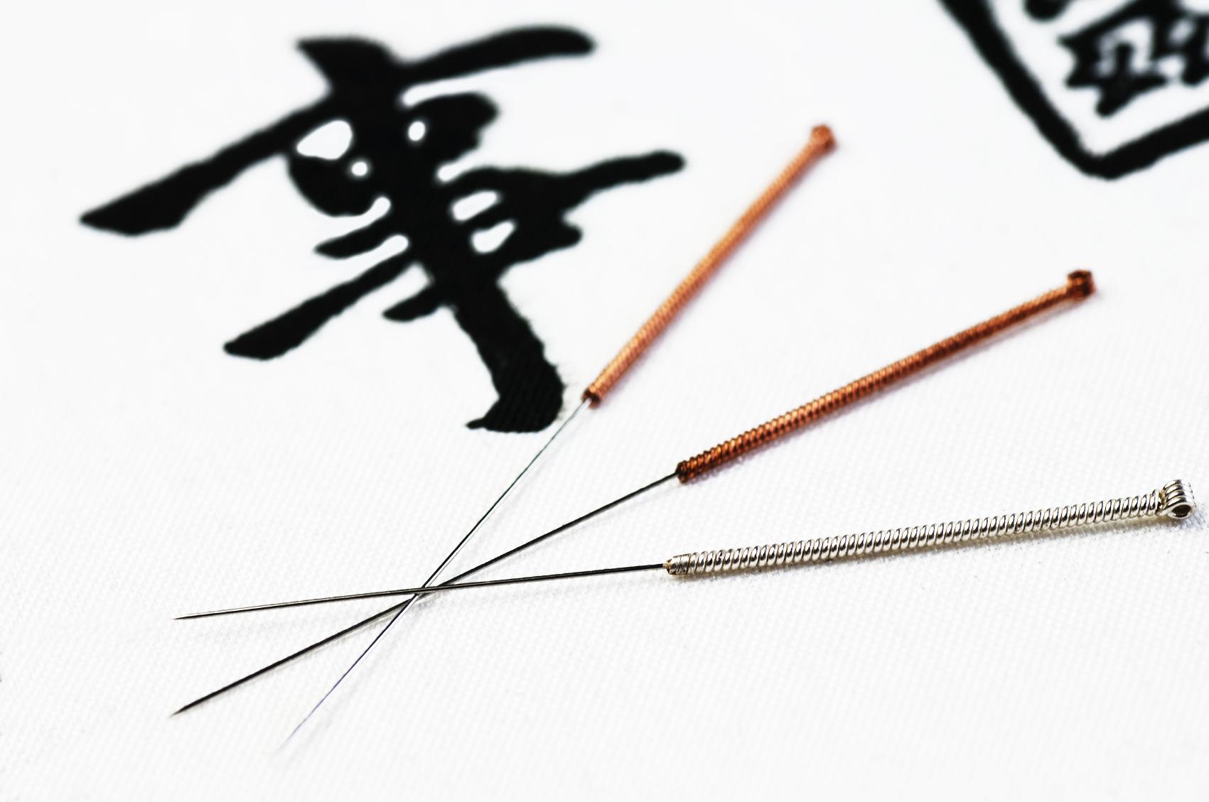 βελονισμος αθηνα, dry needling athens